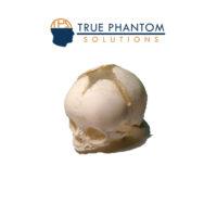 newborn-skull