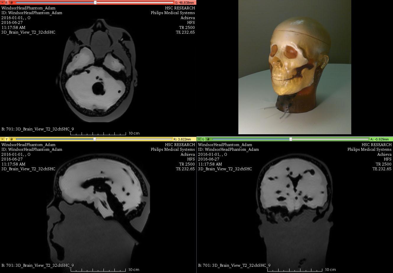 MRI Head Phantom